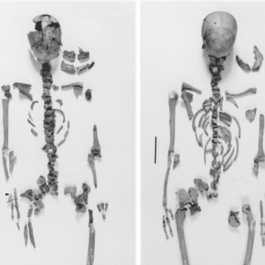 virmuze exhibit Distinguishing between multiple skeletons logo main