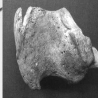 virmuze exhibit Enthesophytosis of the bones of the lower extremities logo main