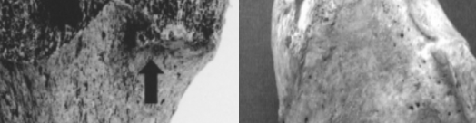 virmuze exhibit Enthesophytosis of the bones of the lower extremities logo main banner